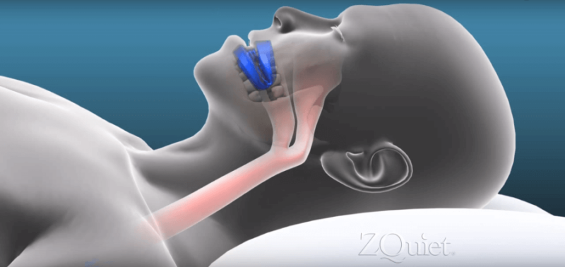illustration showing how to use ZQuiet anti-snoring mouthpiece